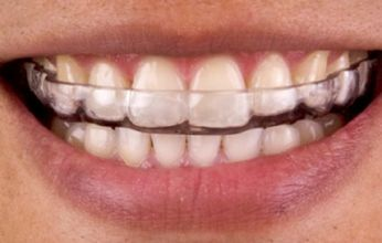 Brace for Bruxism